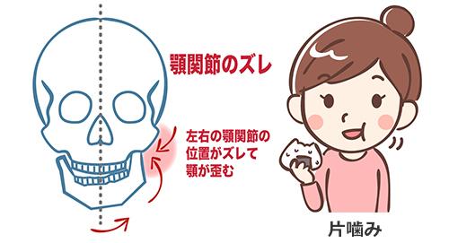 顎関節のずれと片噛み